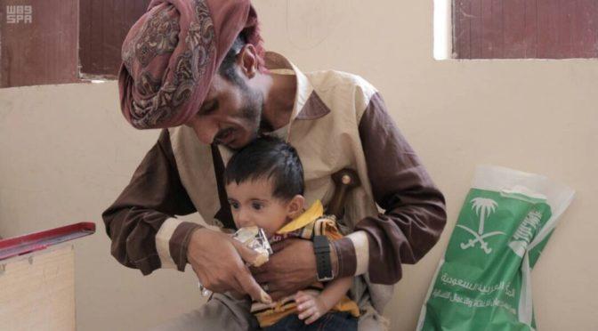 Центр гуманитарной помощи им.Короля Салмана реализует проект по лечению гипотрофии (дефицита питания у детей) в округе Нисаб провинции Шабва